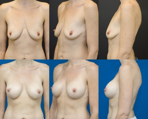 Breast-implant-lift-nyc-01