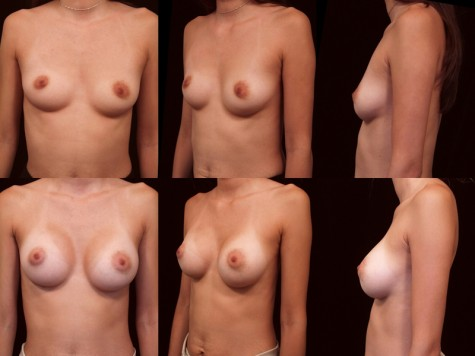 breast_augmentation_2219-new