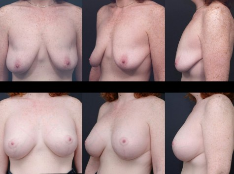 breast-implant-lift-nyc-02