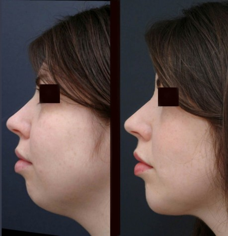 chin_liposuction_6237-new-990×1024
