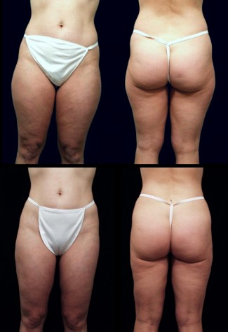 liposuction_1626-new