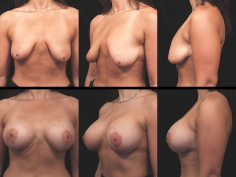 Breast-implant-lift-nyc-04