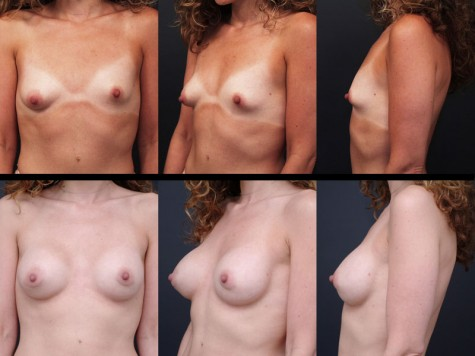 breast-implant-lift-nyc-03