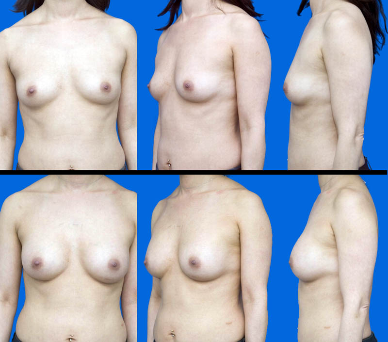 How to Choose Breast Augmentation Size? - RealSelfcom